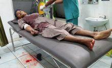 Gagalkan Pencurian Motor di Halaman Masjid, Anggota TNI Terluka di Sijunjung